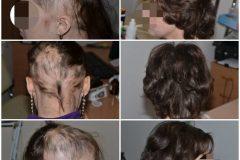 alopeciya-u-vzroslyh-768x768